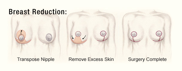 breast-reduction-diagram-2